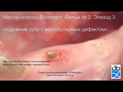 Мастер-класс Лиопласт 2.3 Удаление зуба с дефектом стенки. Пластика альвеолы
