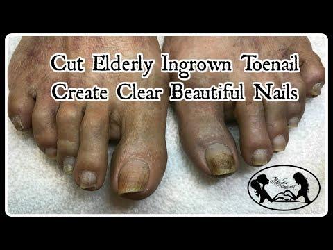 Nail salon - Pedicure Tutorial: Ingrown Toenail Treatment on Elderly and Create Clean Clear Nails