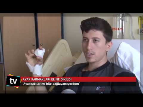 Video Ayak parmakları eline dikildi   Haber   News download in MP3, 3GP, MP4, WEBM, AVI, FLV January 2017