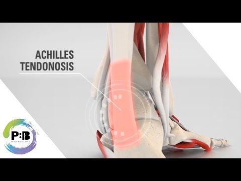 Why Orthotics Can Help With Achilles Tendonosis / Achilles Tendonitis / Cure Foot Pain