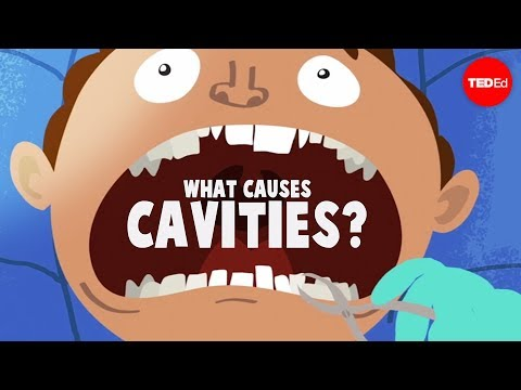 What causes cavities? - Mel Rosenberg