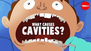 Almost everything you need to know to stop your teeth rotting....
