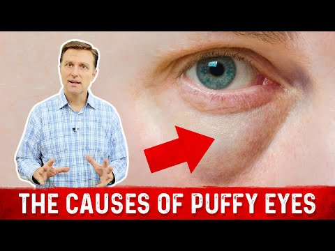 What Really Causes Puffy Eyes and Bags...