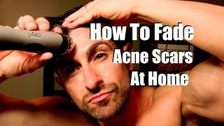 Video How To Fade Acne Scars | Reduce Breakouts | Even Skin Tone At Home | MP3, 3GP, MP4, WEBM, AVI, FLV September 2018