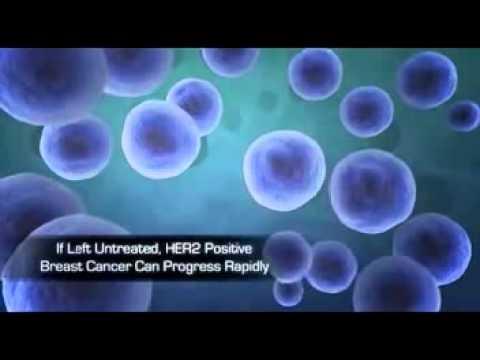 trastuzumab (herceptin)
