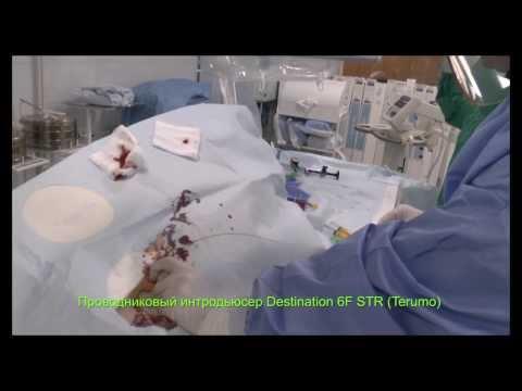 Окклюзия артерий голени и стопы при синдроме диабетической стопы - восстановление кровотока
