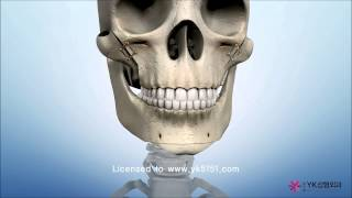Video Facial bone surgery, ASO, Jaw surgery, 사각턱, 광대, 돌출입, 양악 MP3, 3GP, MP4, WEBM, AVI, FLV November 2018