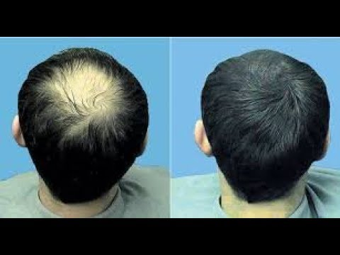 العرب اليوم - طريقة فعّالة لوقف تساقط الشعر ولنموه