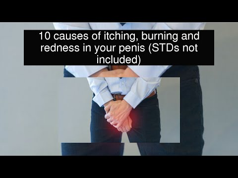10 causes of itching, burning and redness in your penis (STDs not included)