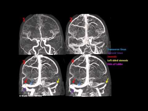 Tinnitus Sufferer finds his OWN cure by emailing expert 3,000 miles away  -2013 News article –