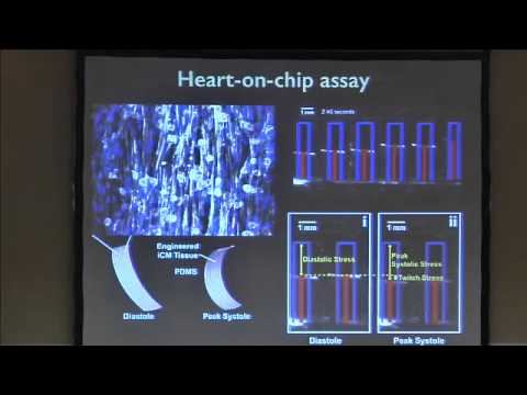 Modeling the Mitochondrial Myopathy of Barth Syndrome using iPSC and Heart-on-chip Technologies