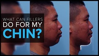 What Can Dermal Fillers Do For My Chin?