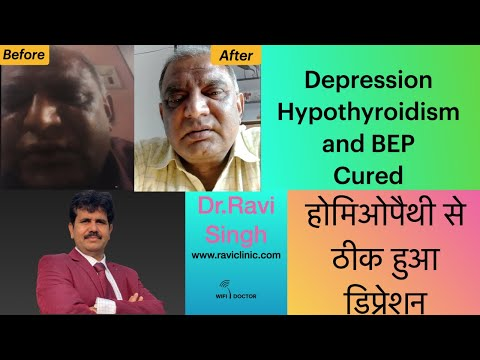 Depression During Lockdown cured along with BEP and Hypothyroidism with Classical Homeopathy