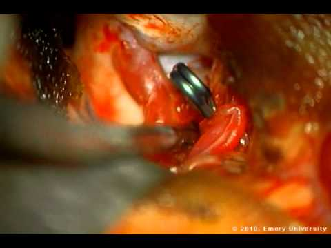 Cotton-Clipping Method Of Intraoperative Aneurysm Tear Ligation - Part 3