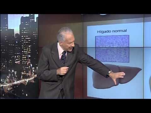 Dr. Cormillot | Trate bien a su hígado (¡es irremplazable!)
