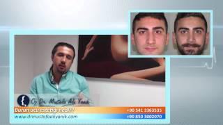 Burun Estetik Hakkında Herşey - Op. Dr. Mustafa Ali Yanık