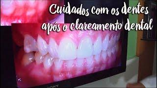 Fica a Dica - Cuidados com os dentes após o clareamento dental