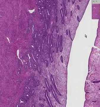 endometrium - Shotgun Histology Proliferative Endometrium.