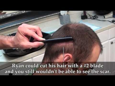 Dr. Brett Bolton Revolutionary Hair Transplant_A plasztikai sebészet kulisszatitkai. Legeslegjobbak