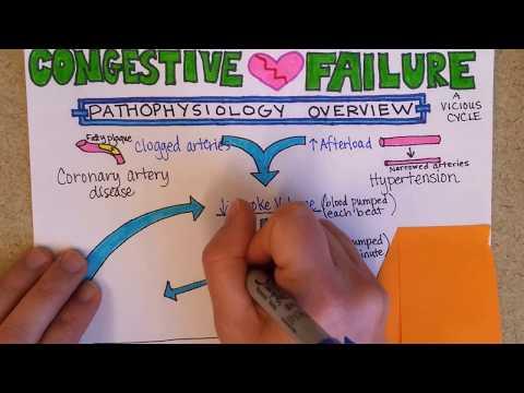 Congestive Heart Failure: Pathophysiology