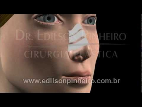 brazil plastic surgery - Before and After in 3D of Nose Surgery - Rhinoplasty - Brazilian Plastic Surgery.