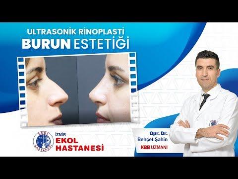 Ultrasonik Rinoplasti - Opr. Dr. Behçet Şahin - İzmir Ekol Hastanesi