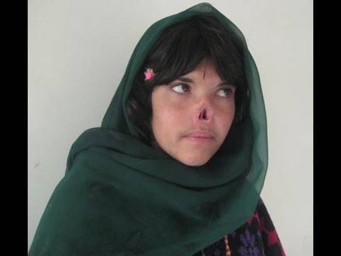 Girl Has Nose/Ears Cut Off By Taliban (Graphic)