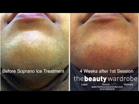 Find out more about Soprano Ice Laser Hair Removal Yorkshire With Surrinder Kaur