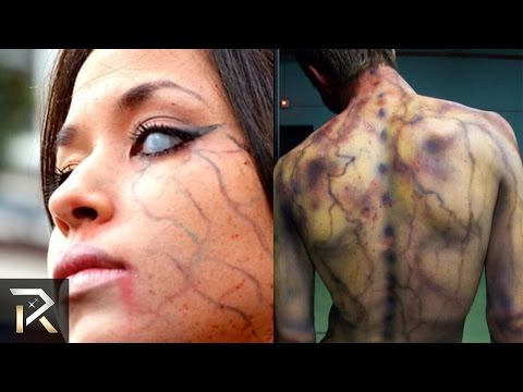 10 People Who Were Struck by Lightning