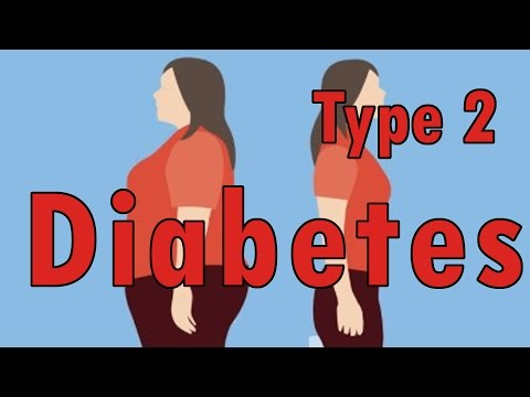The Most Effective Treatment For Diabetes Type 2 | Herbal Treatment For Type 2 Diabetes:  http://bit.ly/steps-to-health ◄ THE ONLY NATURAL TREATMENT FOR DIABETES THAT REALLY CURES DIABETES AND REALLY WORKS!!!Most Effective Treatment For Type 2 Diabetes With Diet, Nutrition & Herbal Treatment:The key to maintaining normal sugar levels in the body is to eat a balanced diet of complex carbohydrates, organic sources of protein, and healthful fats.Eat at regular intervals and eat more often in smaller amounts. Skipping meals is a sure way of causing blood glucose to bounce up and down. - Favor organic chicken and turkey, fish and egg whites. - Include black beans, tofu, garbanzo beans, mung beans, yams, peas, artichokes, pumpkin, celery, spinach, daikon radish, cabbage, water chestnuts.- Eat nuts, seeds, millet, oats, amaranth, quinoa, bran, lentils,  unsweetened low-fat yogurt, and fresh berries.- Include olive oil, flaxseed oil, and virgin coconut oil.- Eliminate all simple sugars and foods high in sugar, such as soft drinks, candy, honey, and molasses.- Alcohol should be eliminated.- Avoid smoking and caffeine which cam have an adverse effect on sugar metabolism.- Learn to read food labels. Look out for sugar, corn syrup, and dextrose as ingredients. It's best to stay away from processed and refined products, which are devoid of healthful fiber and nutrients.[-]http://bit.ly/steps-to-health - Learn The Most Effective Treatment For Diabetes Type 2HERBAL THERAPY FOR DIABETES:Herbs can be found in health food or vitamin stores, online, and at the offices of Chinese medicine practitioners. Herbs should be used according to individual needs; consult with a licensed practitioner for a customized formulation.- Fenugreek, garlic, bilberry, ginseng, and gymnema are beneficial for treating diabetes.- Yin Exhaustion is a natural Chinese herbal formulation that helps build energy reserves to combat the effects of diabetes. It contains: Asiatic Dogwood fruit, Chinese Yam rhizome, Rehmannia root tuber (cured), Poria sclerotium, Asian Water Plantain rhizome, and Tree Peony root bark.- Traditional herbs that have been used for wasting and thirsting disorders include rehmannia, Asian cornelian cherry, Chinese yam, poria, mouton, ganoderma, astragalus, ginseng, and water plantain.ACUPRESSURE TREATMENTS FOR DIABETES:- Diabetes acupressure point below the knee: Find the acupoint Foot Three Miles, four fingerwidths below the kneecap on the right leg. Apply moderate pressure with your right thumb until you feel soreness. Hold for 2 minutes. Repeat on the left leg.[-]http://bit.ly/steps-to-health - Herbal Treatment For Type 2 Diabetes- Diabetes acupressure point above the ankle: Find the acupoint Three Yin Crossing (SP-6), four fingerwidths above the inner anklebone, in the depression near the bone on the right leg. Apply steady pressure with your right thumb until you feel soreness. Hold for 3 minutes. Repeat on the left leg.Engaging both of these points helps regulate digestion and metabolism, strengthens the vital qi, and tones the yin of the kidneys, spleen, and liver, which are involved in endocrine function.Watch More:http://www.ascendents.net/?v=zlGFm-h61LoSubscribe To My Channel:http://www.youtube.com/channel/UCaXk1xr-_QUiiETv1dH6OWQLike Us On Facebook:http://www.facebook.com/Healing-Diabetes-1052835371510319/Visit Our Website:http://sites.google.com/view/healingdiabetes/Watch The Whole Playlist:http://www.youtube.com/playlist?list=PL_N7aUNvLTB43X3eQyvKoPtxsBD8mNGBMWatch The Other Videos:http://www.ascendents.net/?v=MQIR8Pd1BTghttp://www.ascendents.net/?v=NAFj6W-cxcI#AllAboutType1DiabetesCausesAndTreatment#TheMostEffectiveTreatmentForDiabetesType2#HerbalTreatmentFrType2Diabetes#DiabetesMellitusTreatment#AyurvedaTreatmentForDiabetes#StemCellTherapyForDiabetes
