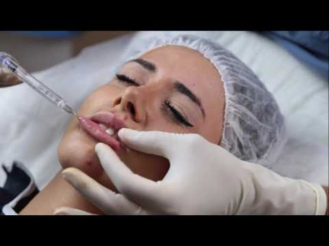 Botoks And Hyaluran Lip Augmentation _ Hyaluran Dudak Dolgusu