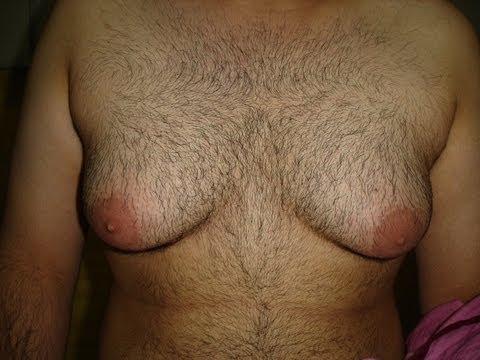 Male breast Removal: Gynecomastia treatment in Chandigarh. (видео)
