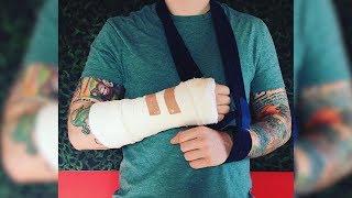 Ed Sheeran Breaks His Arm In Bicycle Accident