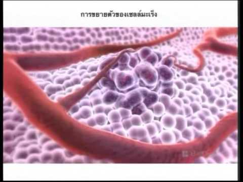 น้ำด่าง - น้ำด่างรักษามะเร็ง - ปานเทพ พัวพงษ์พันธ์.