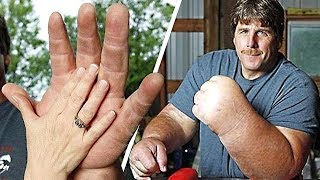 Video 9 PEOPLE WITH THE BIGGEST ARMS, FEET AND MORE. YOU WON'T BELIEVE THEY ARE REAL MP3, 3GP, MP4, WEBM, AVI, FLV April 2019