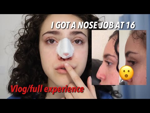 I GOT A NOSE JOB AT 16! (Cost, Pain, Recovery, Etc)