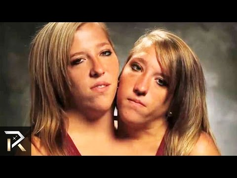 the most amazing conjoined twins