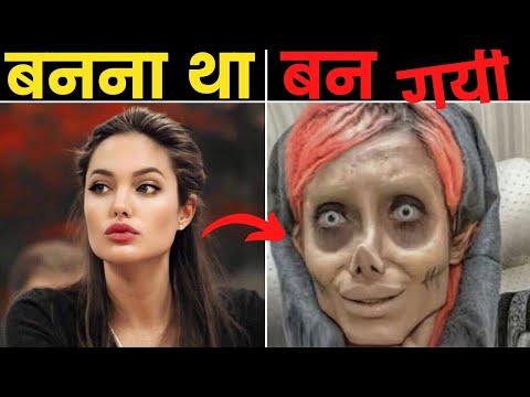 कुछ ऐसे लोग जिन्हें PLASTIC SURGERY हज़म नहीं हुयी | People Who Took Plastic Surgery To Next Level.