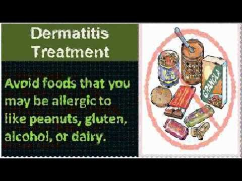 Watch hot tub dermatitis treatment – View Tips!