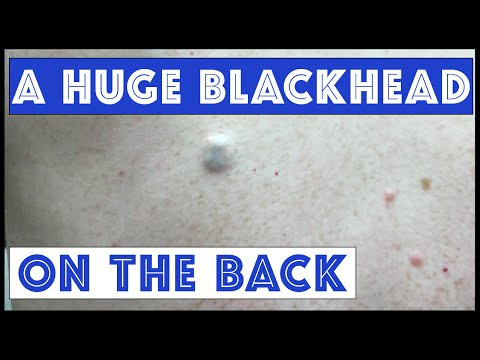 World's biggest blackhead removal!