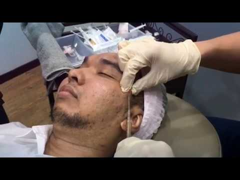 Platelet Rich Plasma (PRP) For Acne Scars