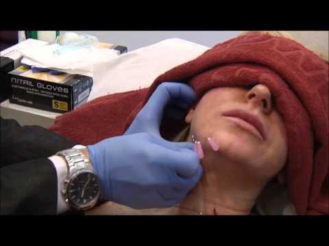 La thérapeutique laser dans le traitement de la phlébite