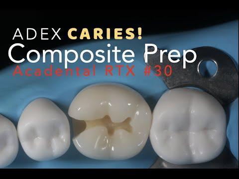 #30 MO COMPOSITE PREP for ADEX