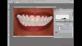 Продвинутое отбеливание зубов в фотошопе