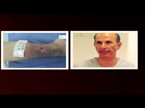 Recenzii ale metodelor de tratament a varicozei