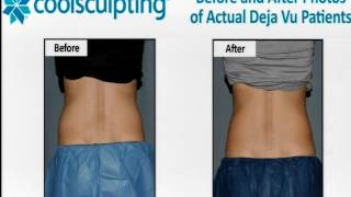 Alix w CoolSculpting info on Midday with Mike