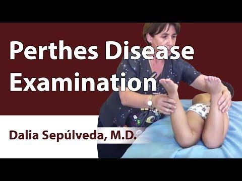 Perthes Disease Examination
