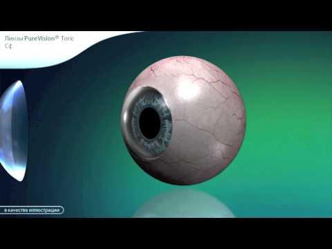 Восстановление зрения нижневартовск