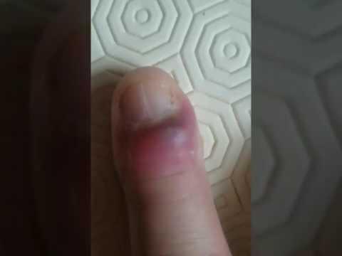 La blancheur du microorganisme végétal sur les ongles des pieds