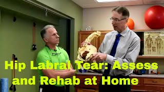 Hip Labrum Tear- How to Assess & Rehab at Home